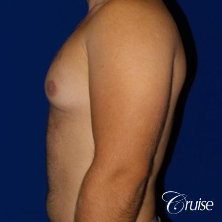 best gynecomastia results - Before Image 3