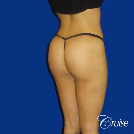 Brazilian Butt Lift - After Image