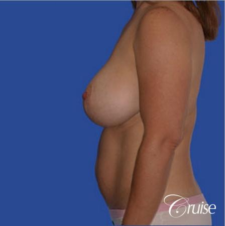 best breast revision tummy tuck mommy make over - Before Image 2