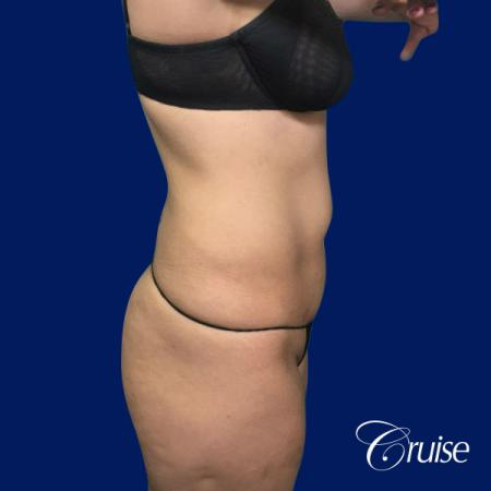 Tummy Tuck Standard Incision - Before Image 4