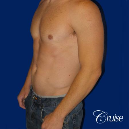 Mild Gynecomastia -Puffy Nipple -Areola Incision - After Image 3