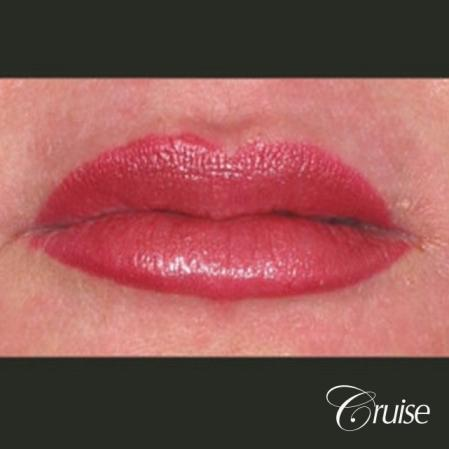 best lip augmentation with juvaderm - After Image
