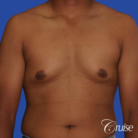 24 yr. old gets gynecomastia surgery with best scars - Before Image 1