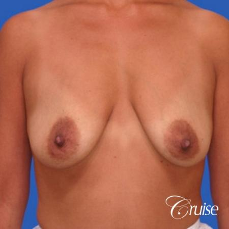 best breast lift donut before and after pictures in Newport Beach - Before 1