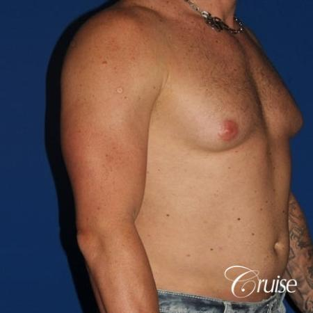 moderate gynecomastia with puffy nipple on athletic adult - Before Image 4