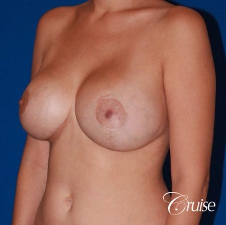 best results for breast lift anchor with saline implanta -  After Image 3