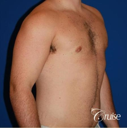 athletic adult with puffy nipple -  After Image 3