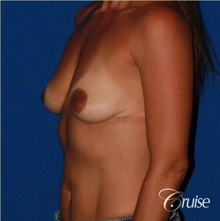 best breast lift on 41 yr old with HP silicone - Before Image 3