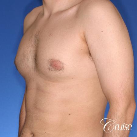 moderate gynecomastia puffy nipple - Before Image 3