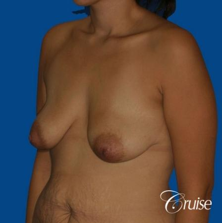 best breast lift anchor by top plastic surgeon in Newport Beach - Before Image 3