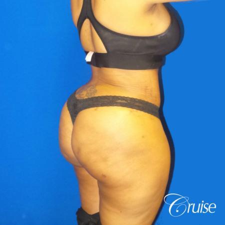 Brazilian Butt Lift - After Image 3