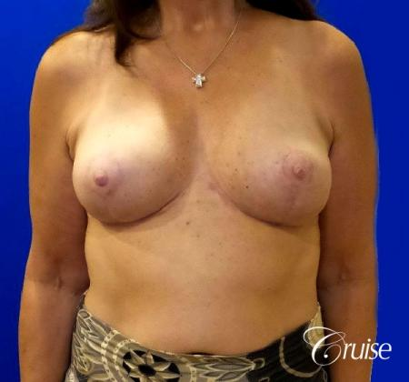 Breast Reduction - No Implants - After Image