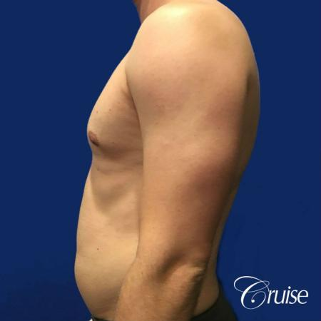 Moderate Gynecomastia -Puffy Nipple -Areola Incision - Before Image 3