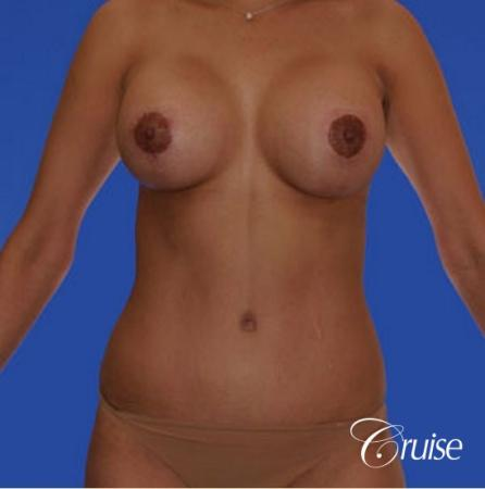 mommy makeover with silicone lollipop lift with best scars - After