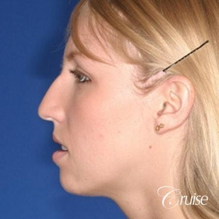 young female with large anatomic chin implant - Before Image 2