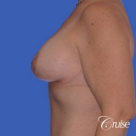 best photos of breast lift anchor on 39 yr old -  After Image 2