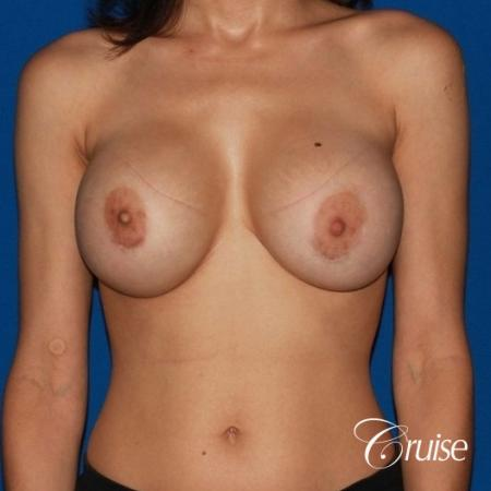 best breast lift revision with moderate profile silicone implants - Before 1