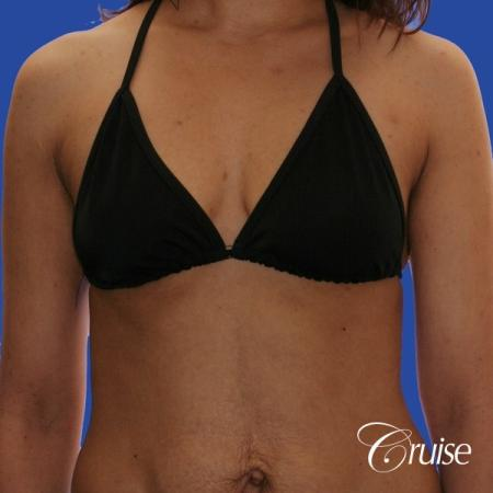 best scars for  breast lift anchor saline in Newport Beach, Orange County - Before Image 4