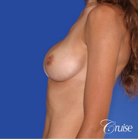 best pictures of breast implant rupture saline - Before Image 2