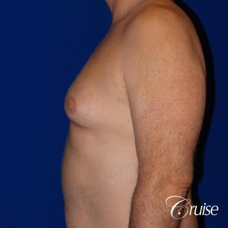 Moderate Gynecomastia -Areola Incision - Before and After Image 3