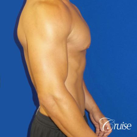 Gynecomastia puffy nipples cost -  After Image 3