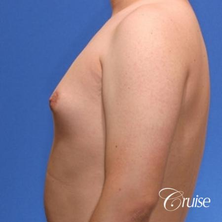 young male with mild gynecomastia surgery for puffy nipple - Before 2