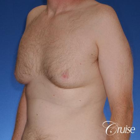 best donut lift with gynecomastia surgery - Before Image 2