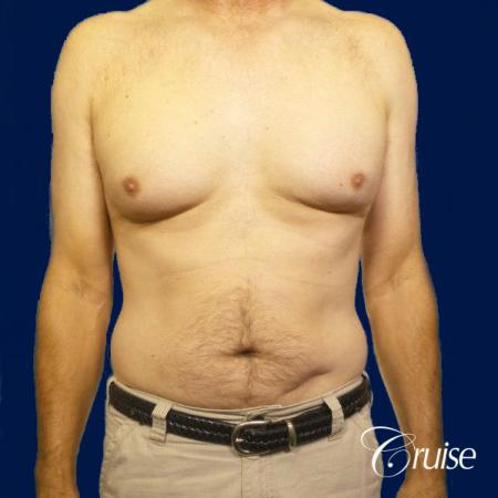 Moderate Gynecomastia Pedicle - Before Image