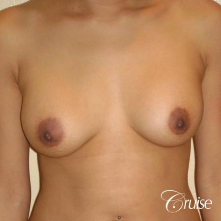 best revision to correct asymmetric breast - Before Image 1