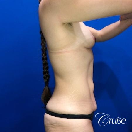Breast Augmentation, Tummy Tuck - Before Image 4