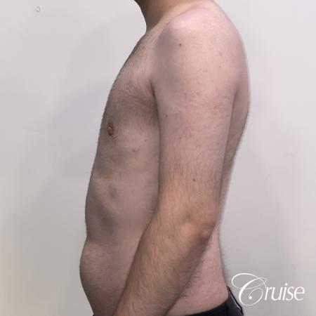 Gynecomastia: Patient 128 - After 2