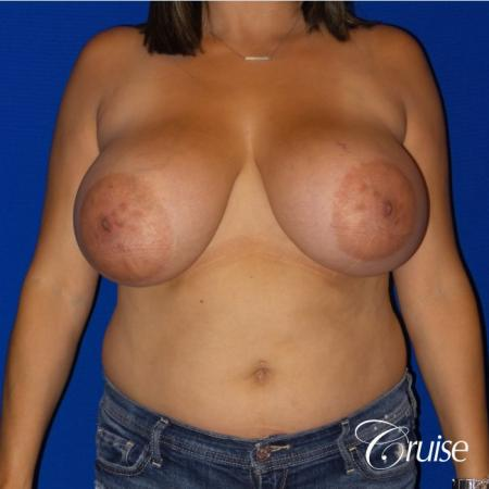 Breast reduction surgery with no implants added - Before Image 1