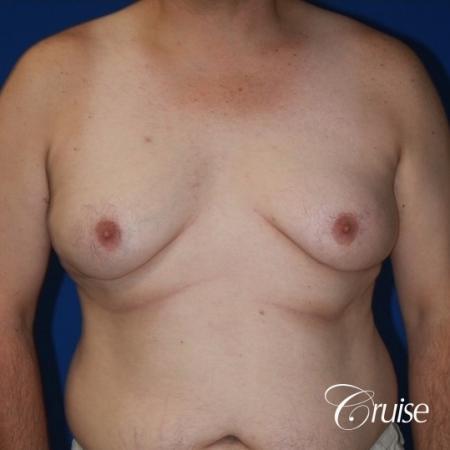 male breast severe gynecomastia free nipple graft anchor - Before Image 1