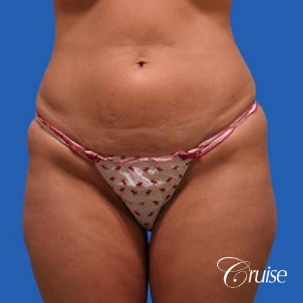 before and after pictures of liposuction abdomen and flanks - Before Image