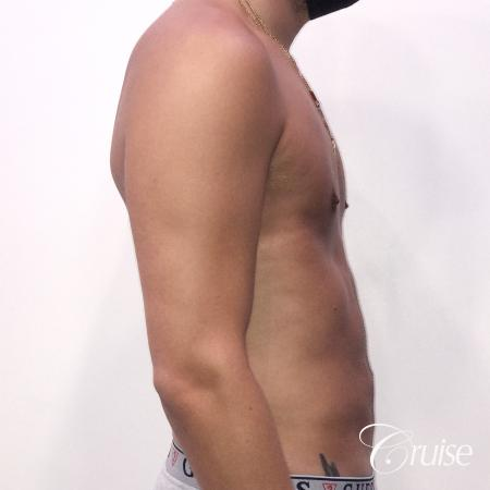 gynecomastia correction orange county -  After 4