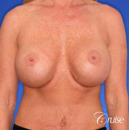 best correction of bottomed out implants revision surgery - Before Image