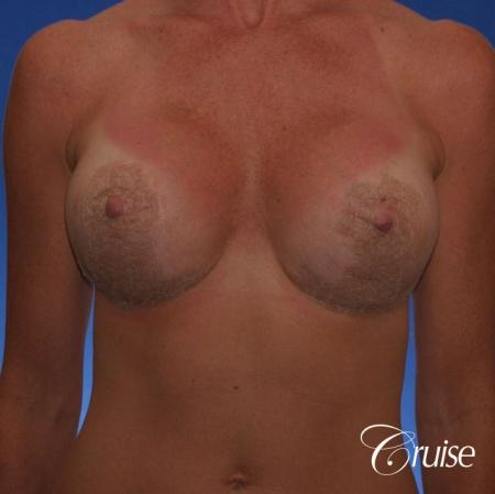 Best breast revision for low implants - After Image