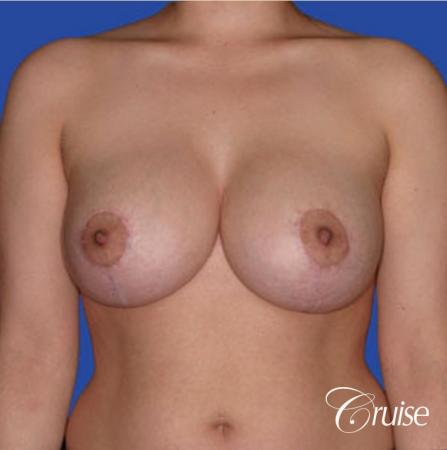 best round saline implants after breast reduction -  After Image 1