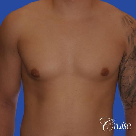mild gynecomastia with puffy nipple and areola incision - Before Image 1
