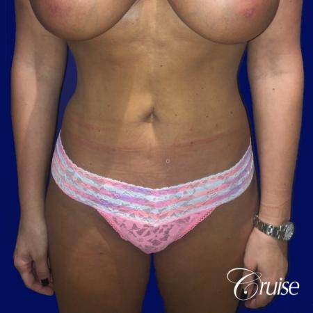Liposuction Abdomen and Flanks with Midline Contour - After Image 1
