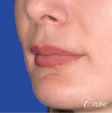 best fillers plastic surgeon does lip augmentation - After Image 2