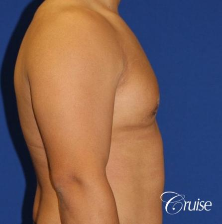 donut lift gynecomastia moderate adult -  After Image 3