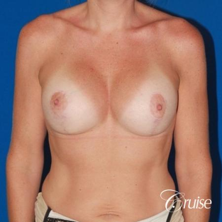 moderate profile saline breast lift anchor before and after pictures -  After Image 1