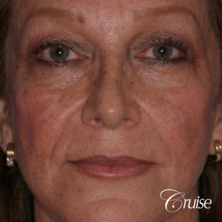 best chemical peel on female patient - Before Image