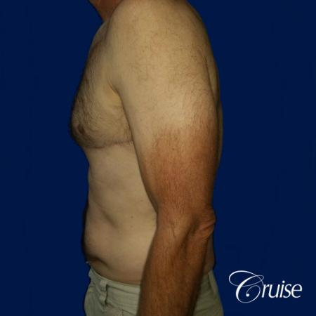Moderate Gynecomastia Pedicle - After Image 2