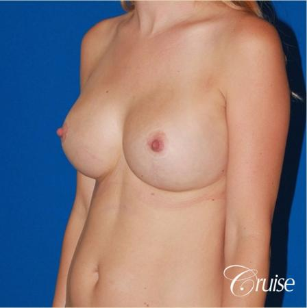 best breast revision for closer cleavage -  After Image 3