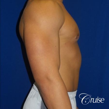 bodybuilder with gynecomastia -  After 2