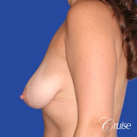 best results for breast lift surgeon in Newport Beach - Before Image 2