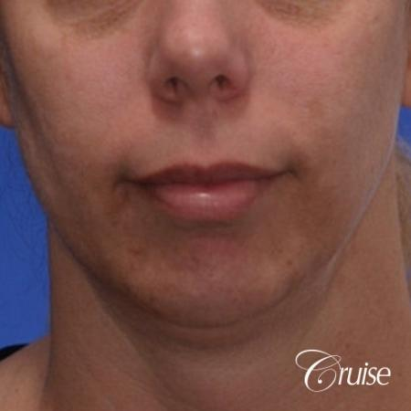 best medium anatomic chin implant on female - Before Image 1