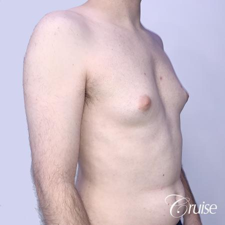 Gynecomastia: Patient 128 - Before and After 5